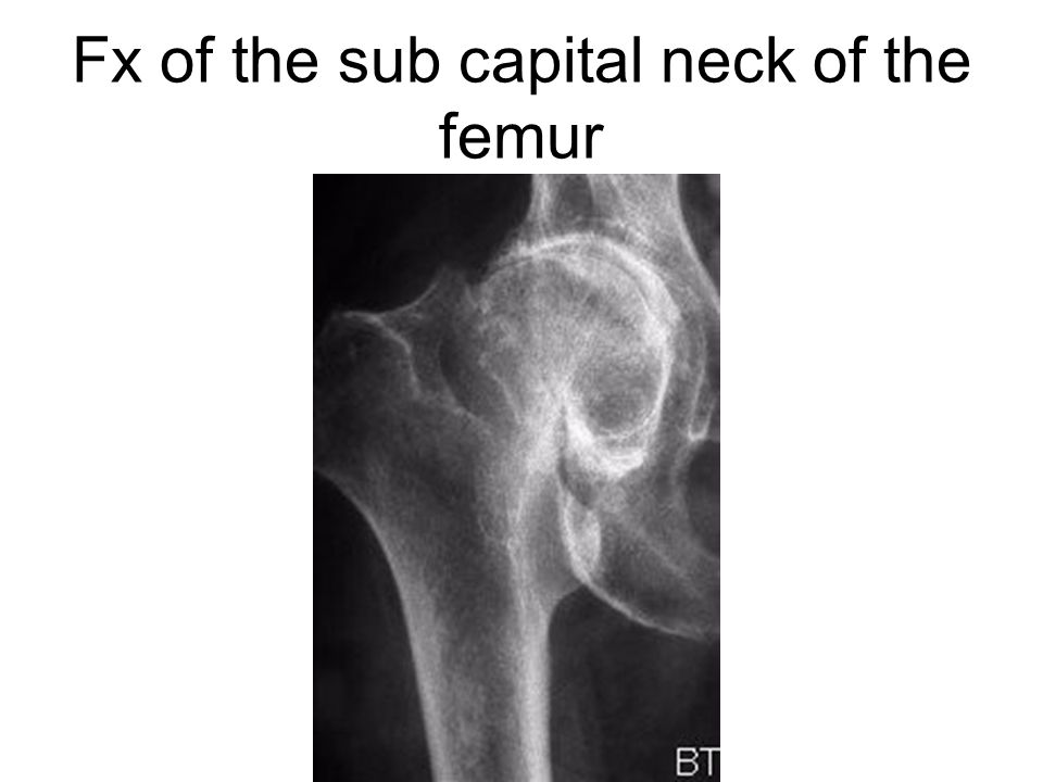 Fx of the sub capital neck of the femur