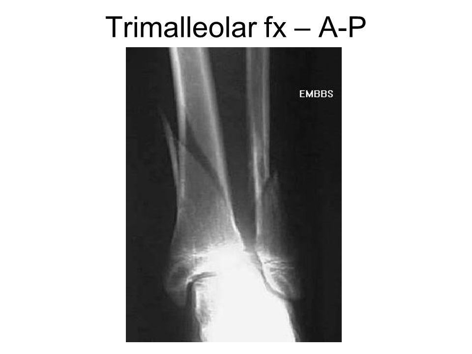 Trimalleolar fx – A-P