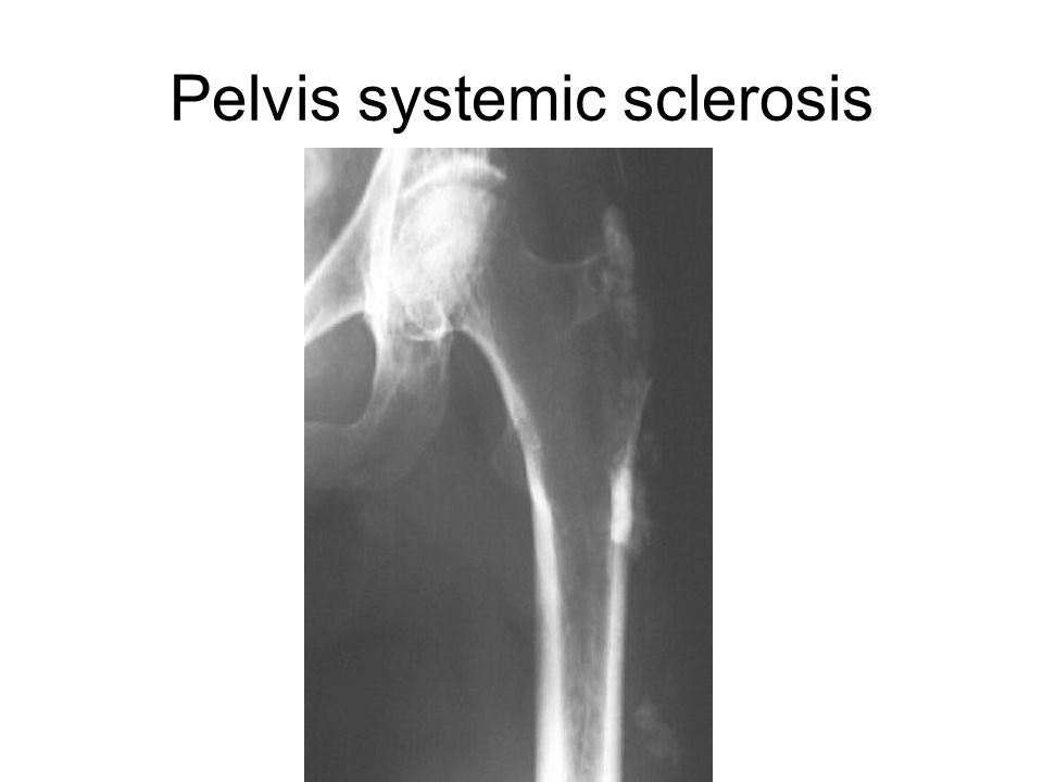 Pelvis systemic sclerosis