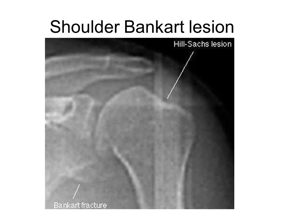 Shoulder Bankart lesion