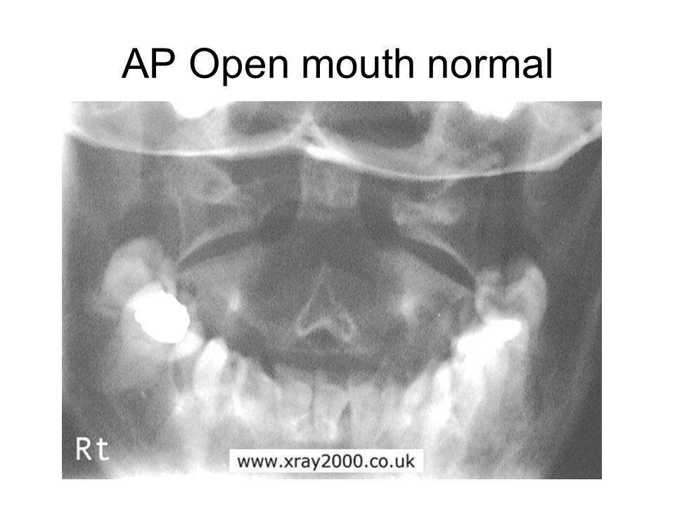 AP Open mouth normal
