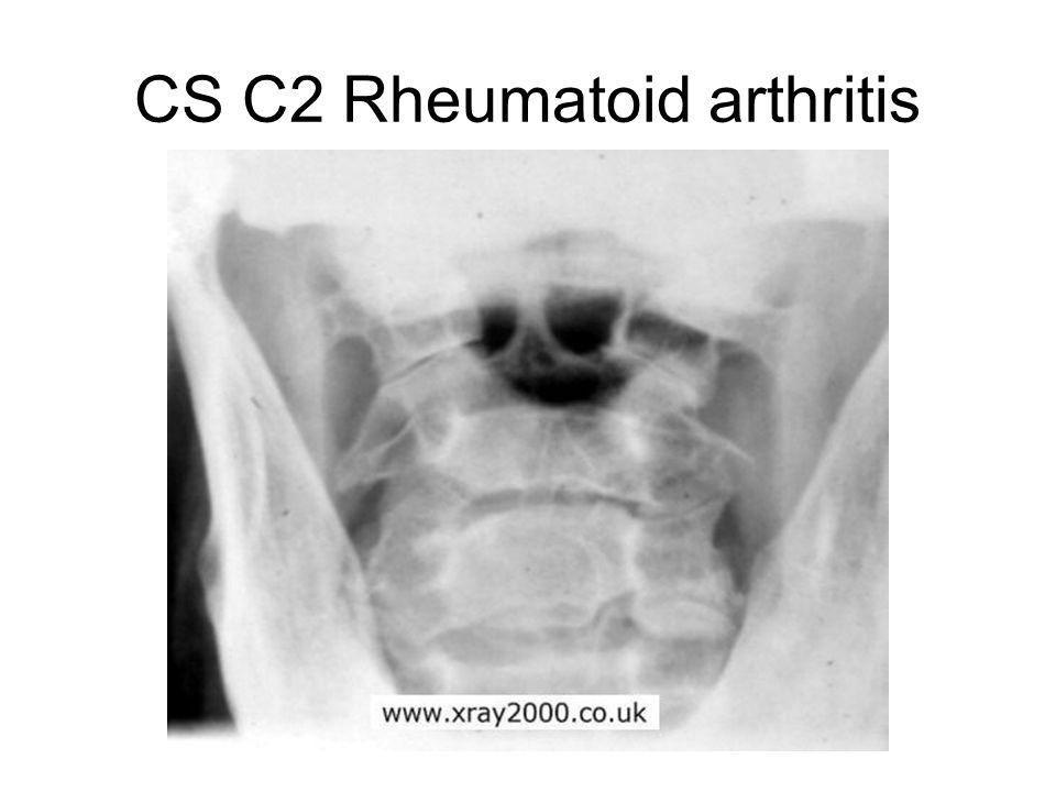 CS C2 Rheumatoid arthritis
