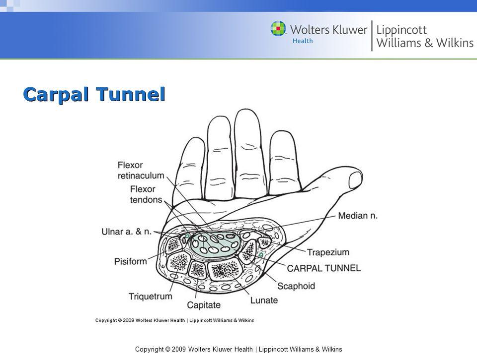 Copyright © 2009 Wolters Kluwer Health | Lippincott Williams & Wilkins Carpal Tunnel