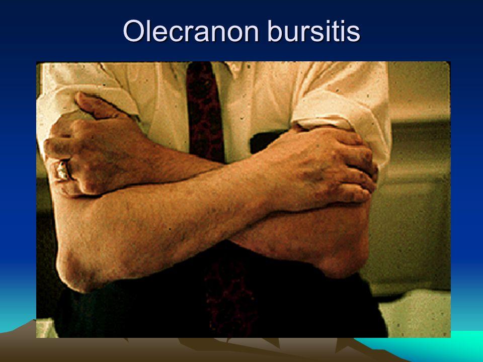 Olecranon bursitis