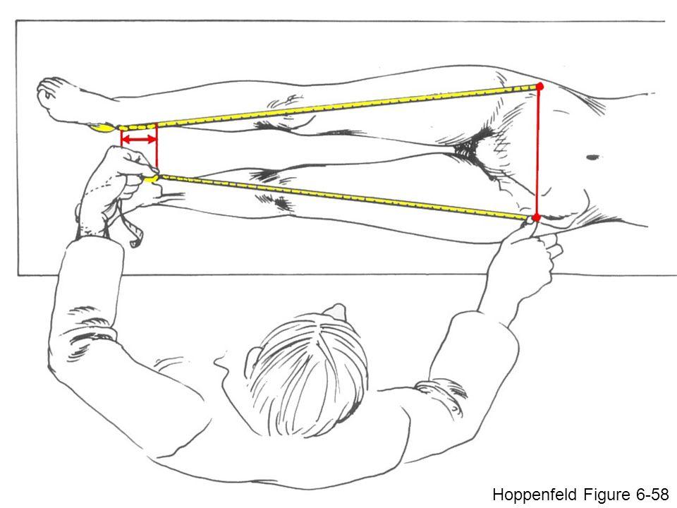 Hoppenfeld Figure 6-58