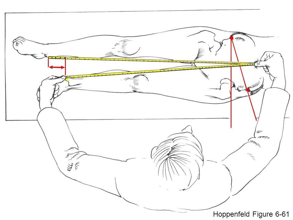 Hoppenfeld Figure 6-61