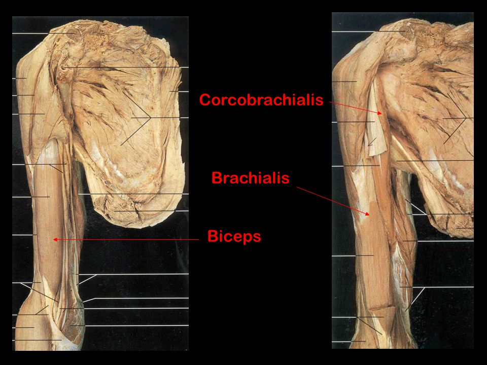 Brachioradialis (Radial n.* exception) Origin: distal humerus Insertion: Styloid process of ulna Action: Flexes elbow