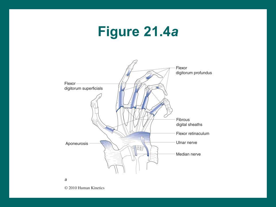 Figure 21.4a