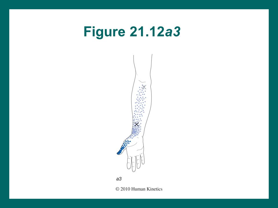 Figure 21.12a3