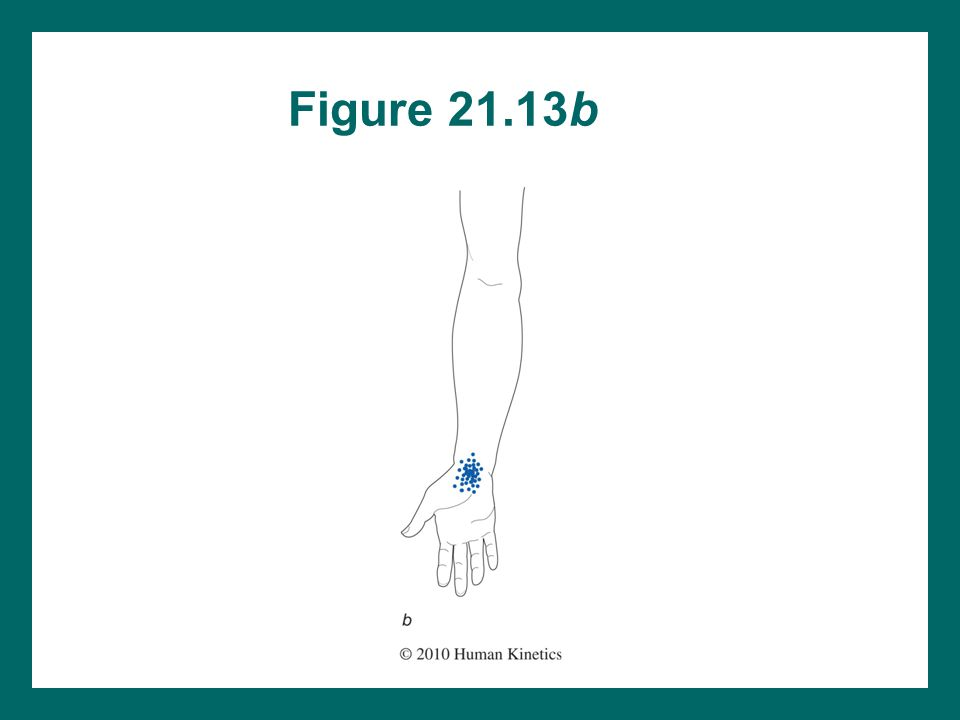 Figure 21.13b