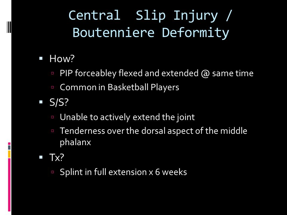 Central Slip Injury / Boutenniere Deformity  How?  PIP forceabley flexed and extended @ same time  Common in Basketball Players  S/S?  Unable to