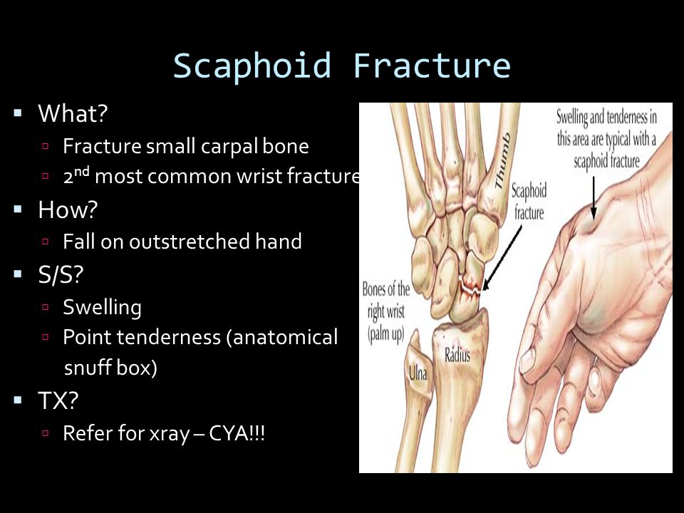 Scaphoid Fracture  What?  Fracture small carpal bone  2 nd most common wrist fracture  How?  Fall on outstretched hand  S/S?  Swelling  Point