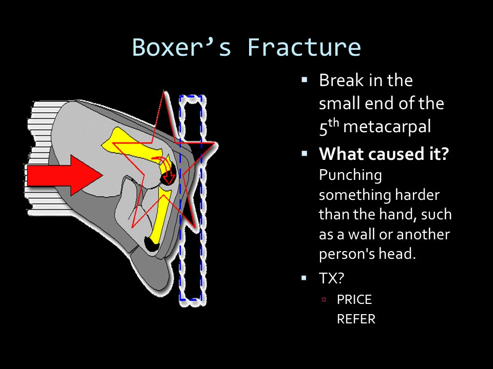 Boxer's Fracture  Break in the small end of the 5 th metacarpal  What caused it? Punching something harder than the hand, such as a wall or another