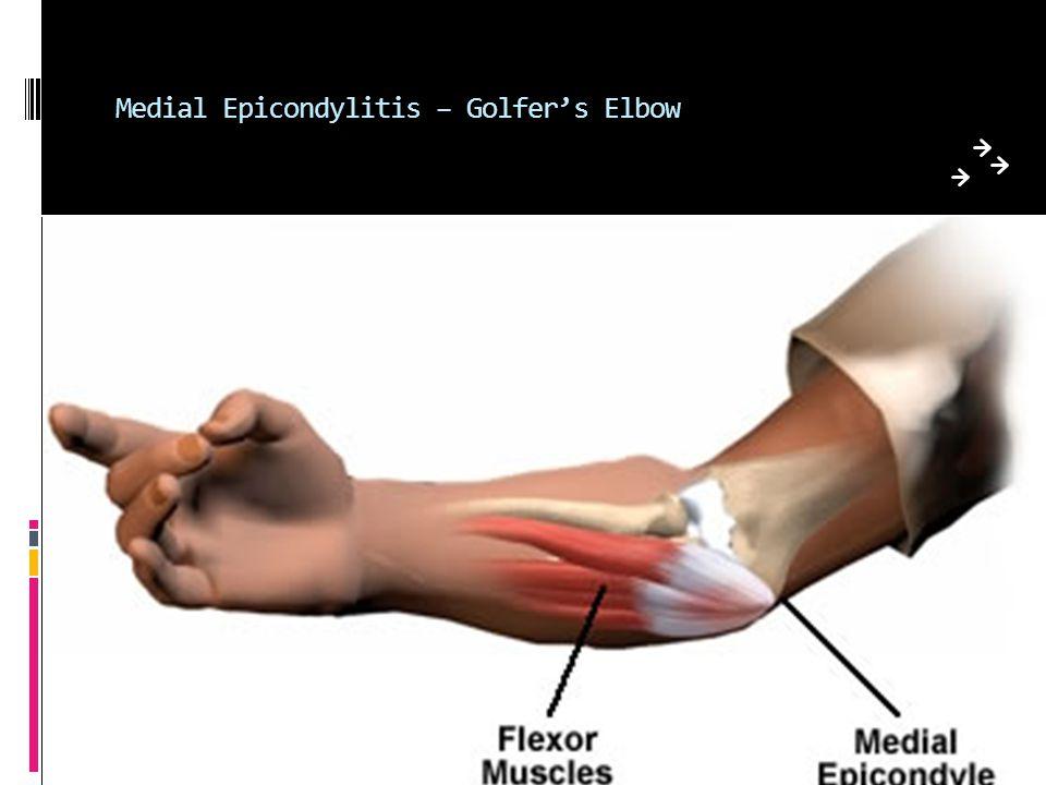 Medial Epicondylitis – Golfer's Elbow