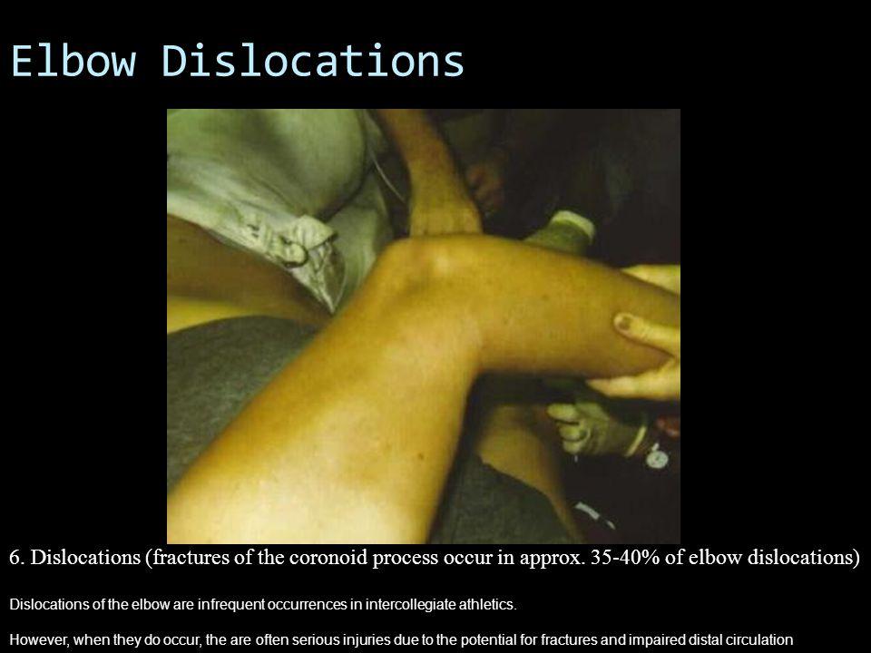 Central Slip Injury / Boutenniere Deformity