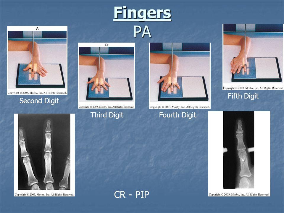 Distal Humerus – Partial Flexion AP