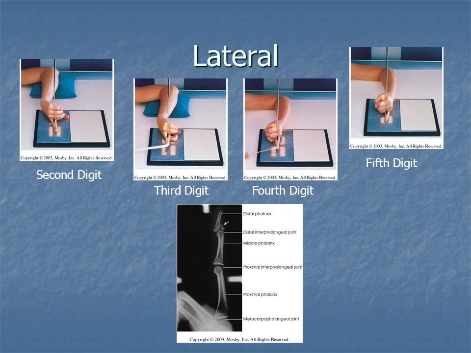 Proximal Forearm – Partial Flexion AP