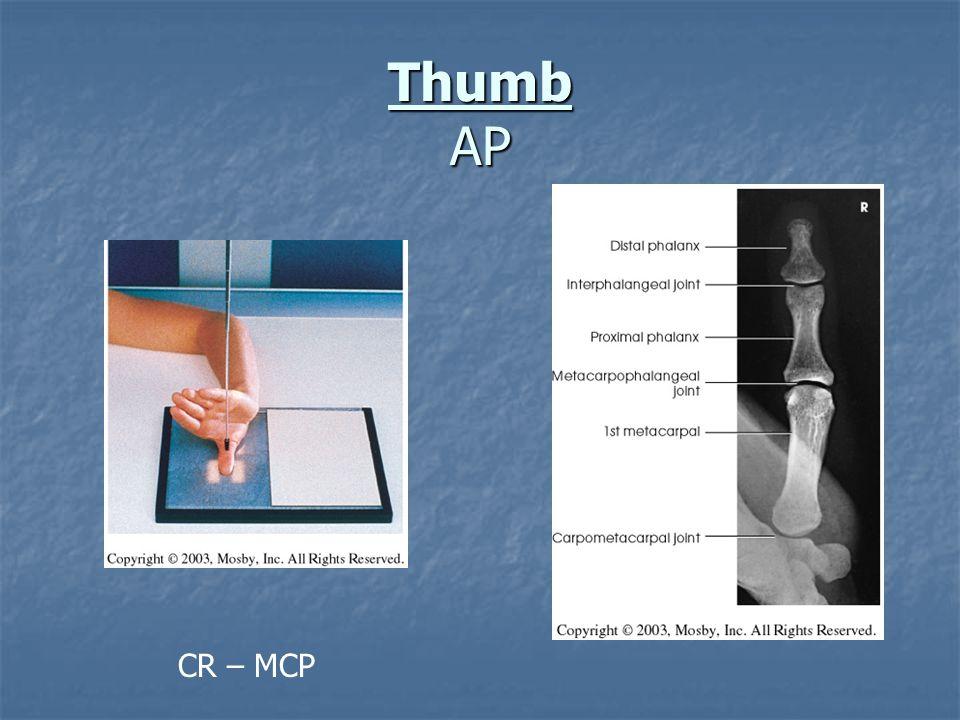 Knee AP – Sthenic Patient CR - 1/2 distal to apex of patella