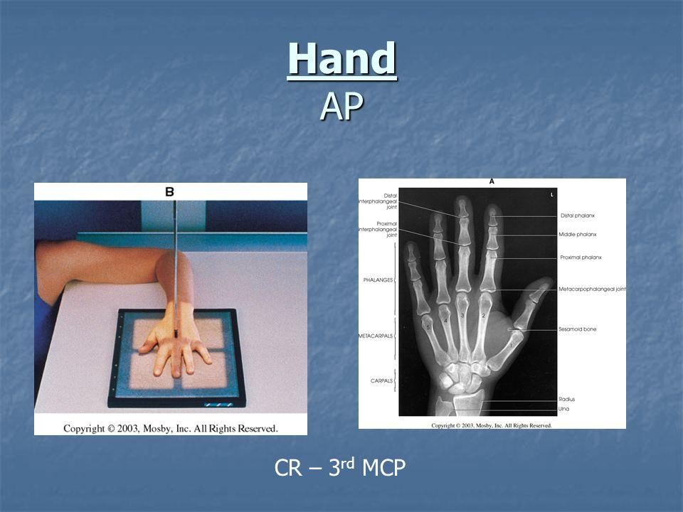 AP - Asthenic Patient