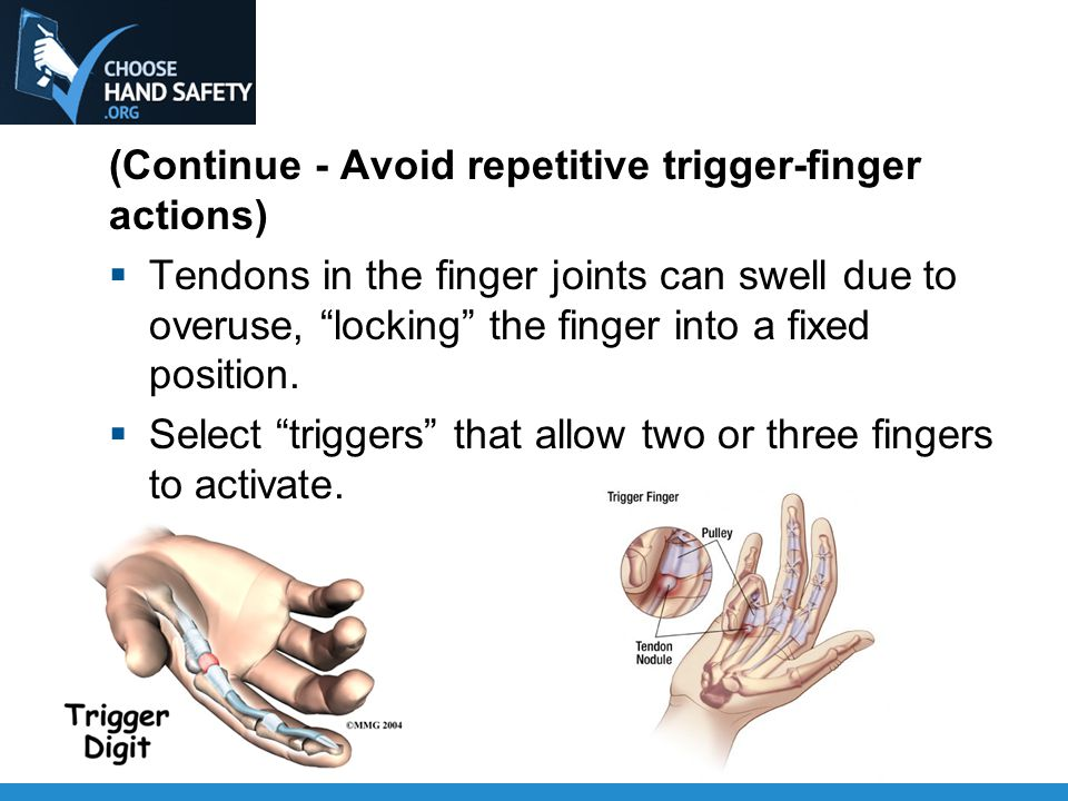 (Continue - Avoid repetitive trigger-finger actions)  Tendons in the finger joints can swell due to overuse, locking the finger into a fixed position.