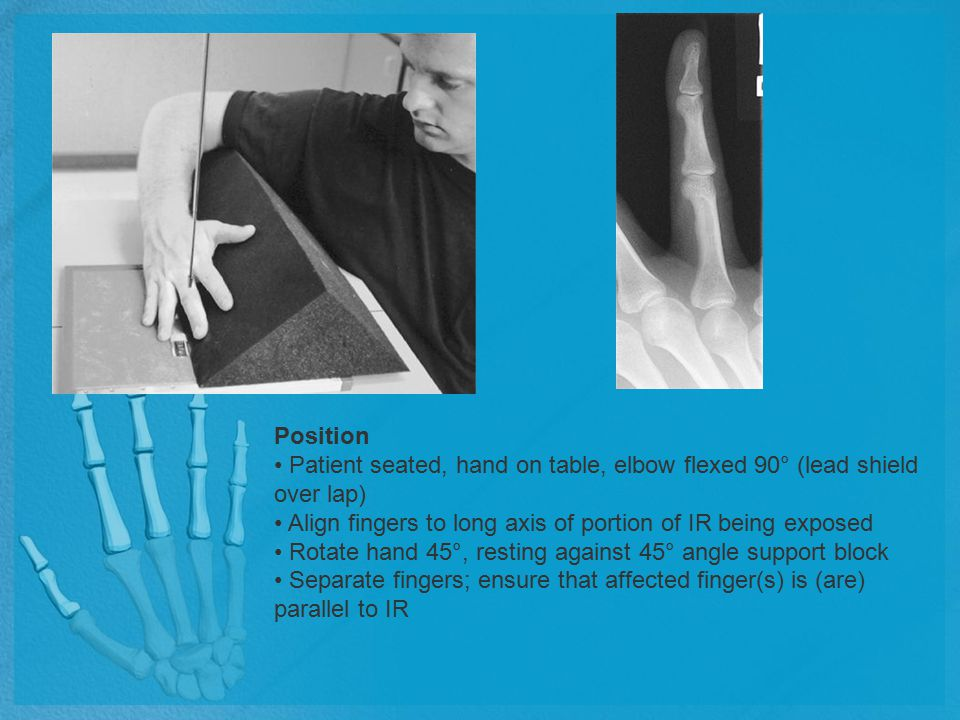 Position Patient seated, hand on table, elbow flexed 90° (lead shield over lap) Align fingers to long axis of portion of IR being exposed Rotate hand