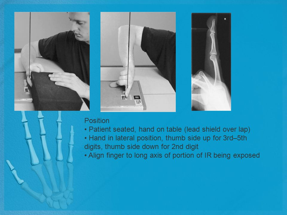 Position Patient seated, hand on table (lead shield over lap) Hand in lateral position, thumb side up for 3rd–5th digits, thumb side down for 2nd digi
