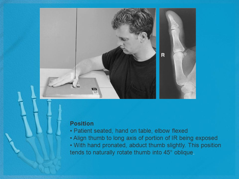Position Patient seated, hand on table, elbow flexed Align thumb to long axis of portion of IR being exposed With hand pronated, abduct thumb slightly
