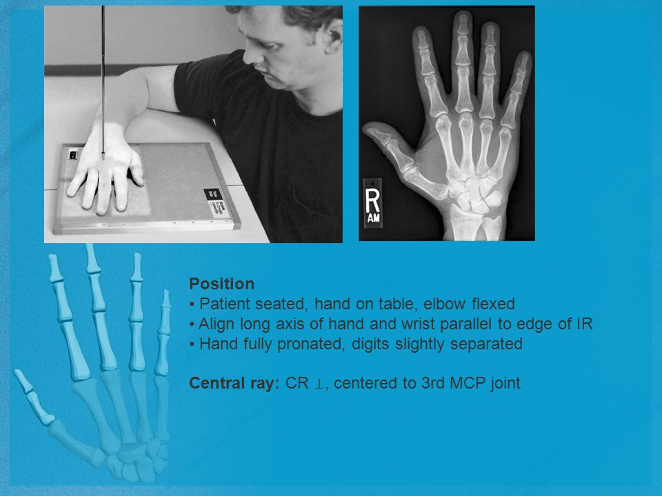 Position Patient seated, hand on table, elbow flexed Align long axis of hand and wrist parallel to edge of IR Hand fully pronated, digits slightly sep