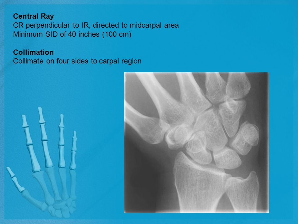 Central Ray CR perpendicular to IR, directed to midcarpal area Minimum SID of 40 inches (100 cm) Collimation Collimate on four sides to carpal region