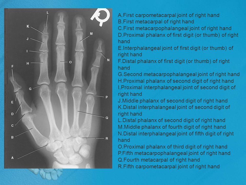 WRIST The wrist has eight carpal bones, which are fitted closely together and arranged in two horizontal rows.