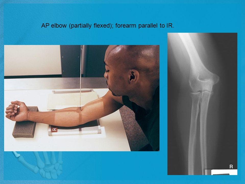AP elbow (partially flexed); forearm parallel to IR.