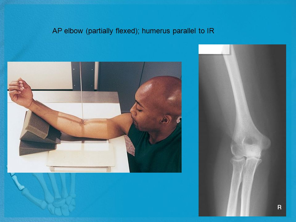 AP elbow (partially flexed); humerus parallel to IR