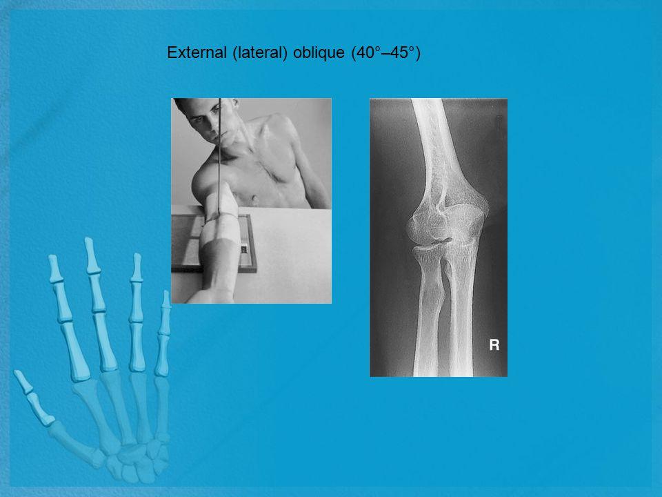 External (lateral) oblique (40°–45°)