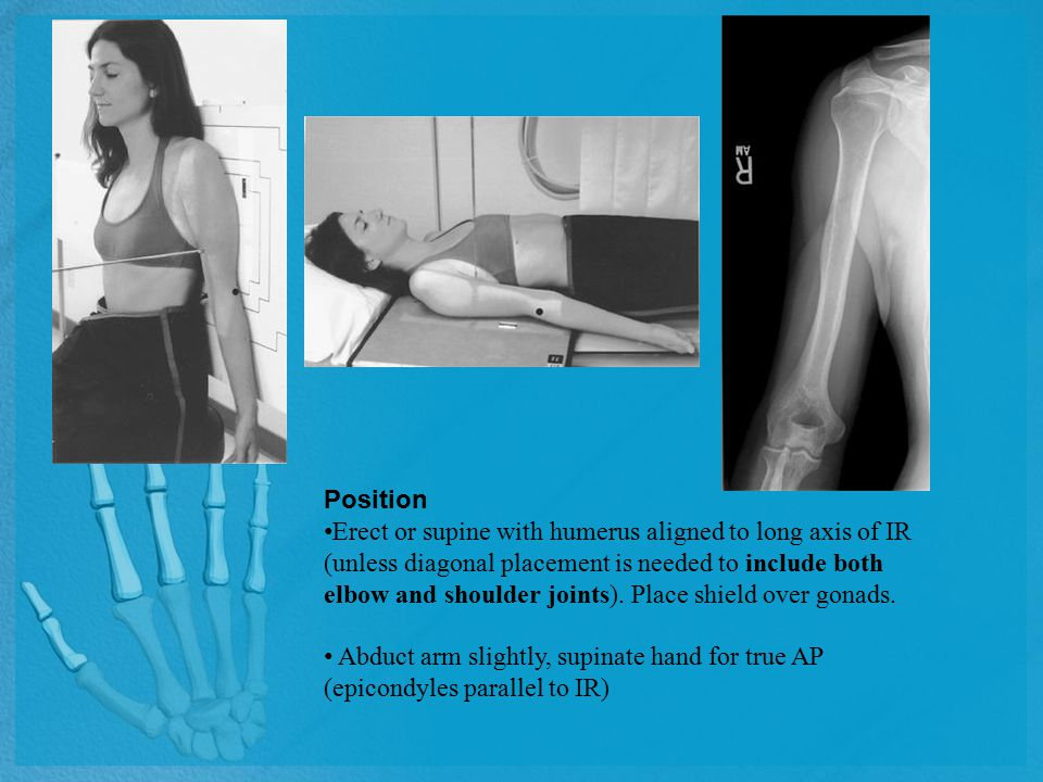 Position Erect or supine with humerus aligned to long axis of IR (unless diagonal placement is needed to include both elbow and shoulder joints). Plac