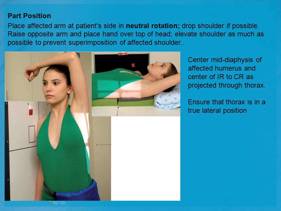 Part Position Place affected arm at patient's side in neutral rotation; drop shoulder if possible. Raise opposite arm and place hand over top of head;