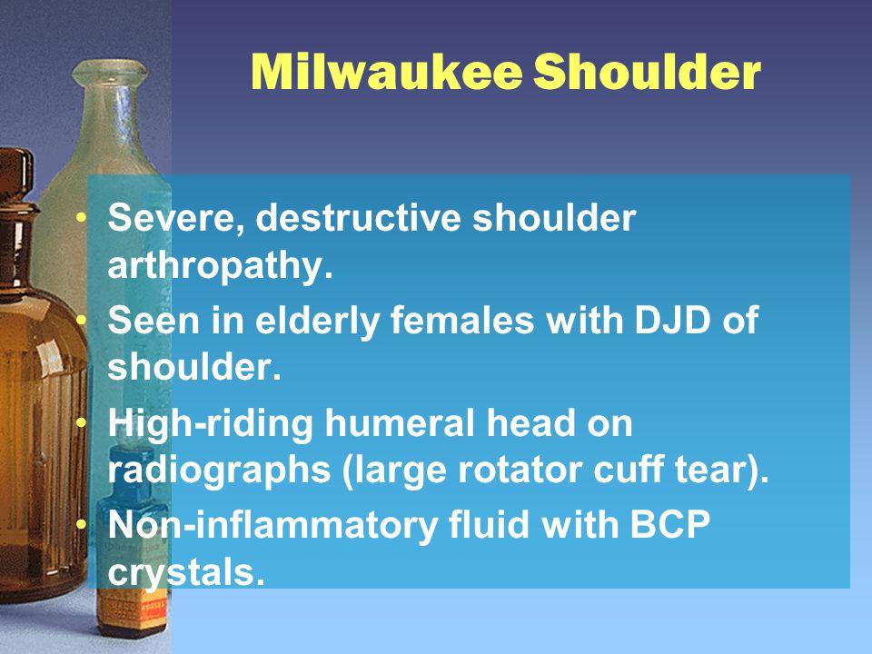 Milwaukee Shoulder Severe, destructive shoulder arthropathy. Seen in elderly females with DJD of shoulder. High-riding humeral head on radiographs (la