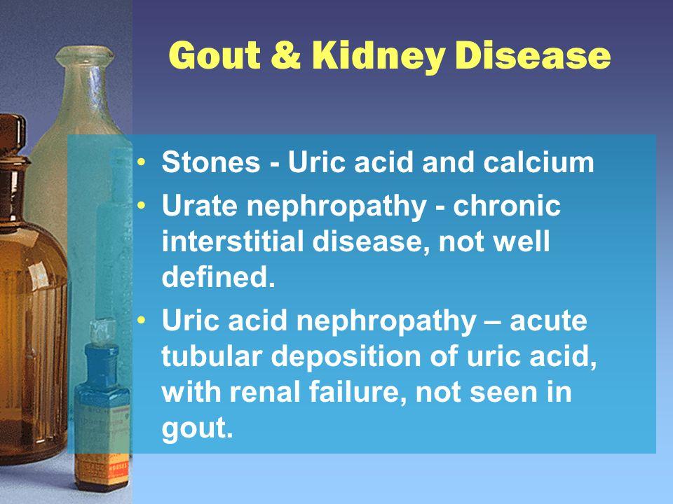 Gout & Kidney Disease Stones - Uric acid and calcium Urate nephropathy - chronic interstitial disease, not well defined. Uric acid nephropathy – acute