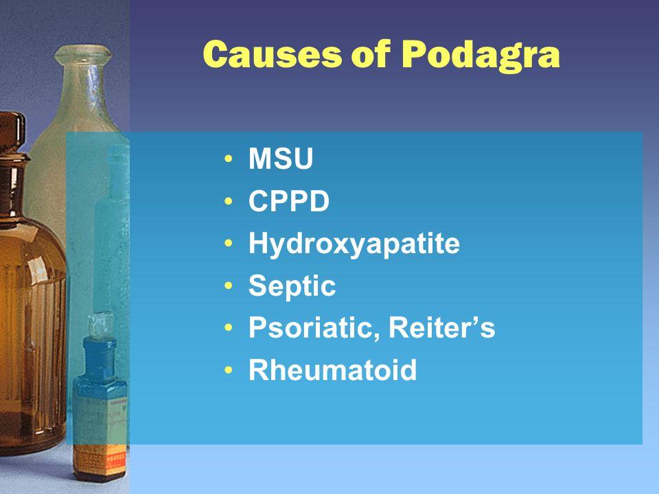 Causes of Podagra MSU CPPD Hydroxyapatite Septic Psoriatic, Reiter's Rheumatoid