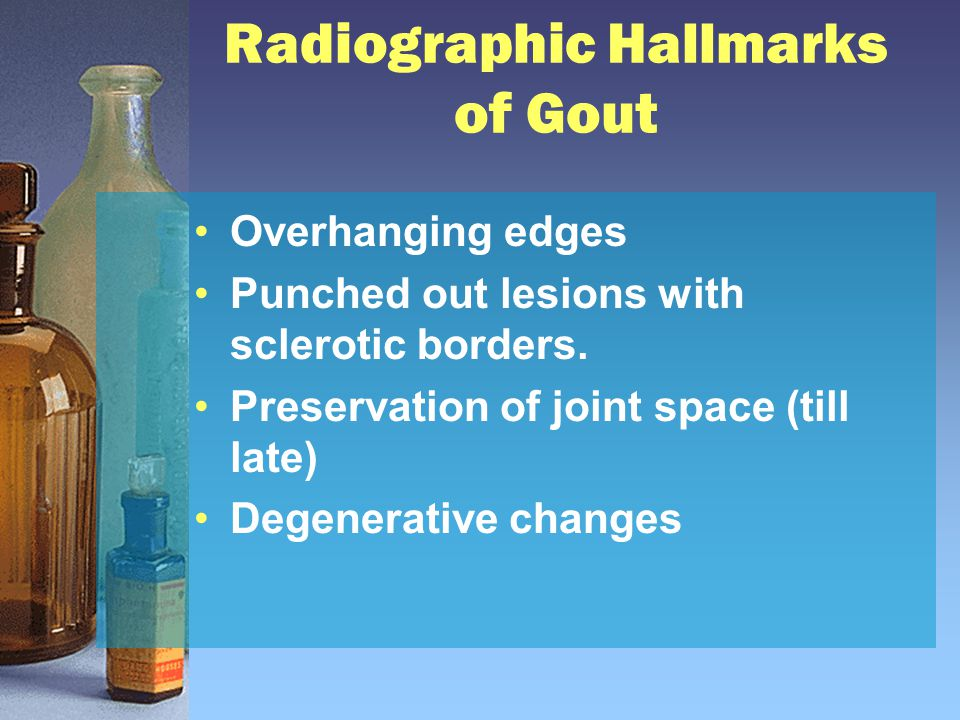 Radiographic Hallmarks of Gout Overhanging edges Punched out lesions with sclerotic borders.