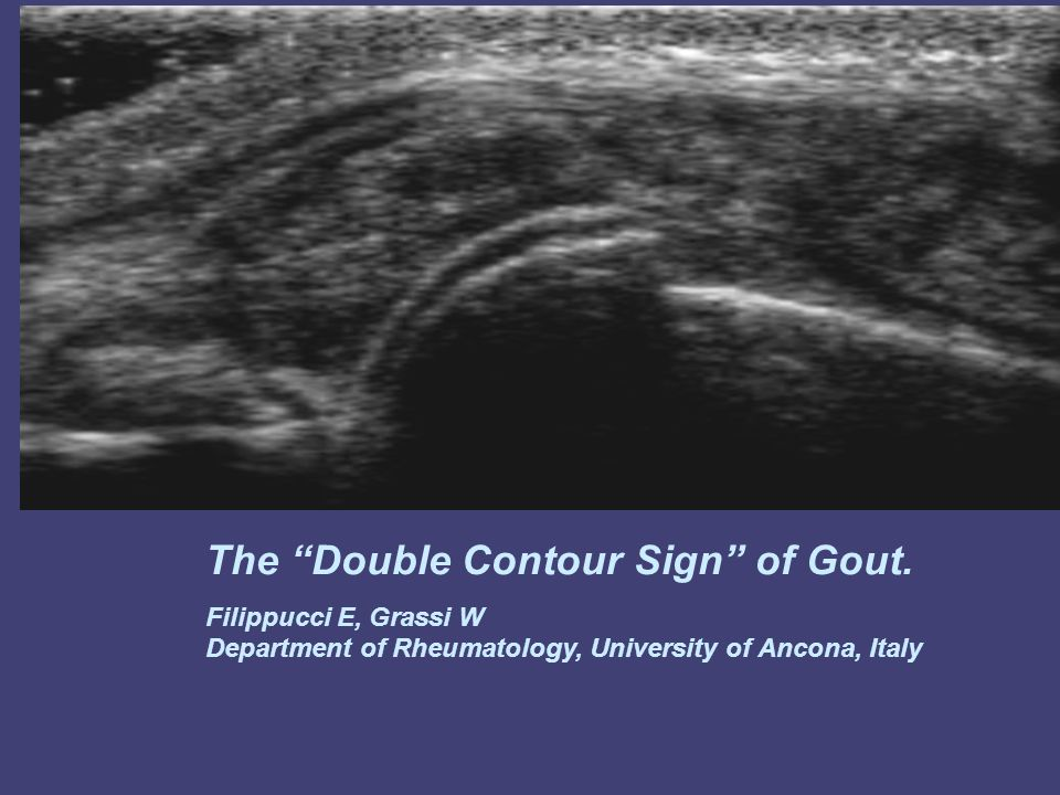 The Double Contour Sign of Gout.