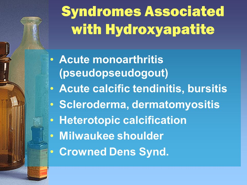 Syndromes Associated with Hydroxyapatite Acute monoarthritis (pseudopseudogout) Acute calcific tendinitis, bursitis Scleroderma, dermatomyositis Heter