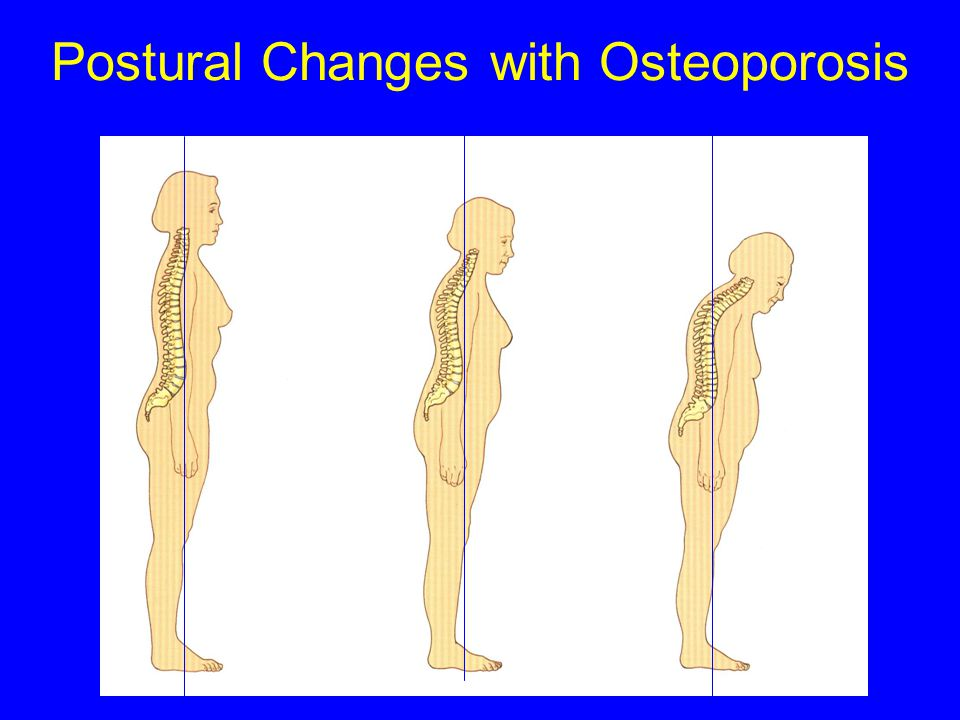 Bone Strength  Bone Density  Bone Quality mineralisation  Bone Architecture connectivity  Bone Turnover Pagets  Geometry of Skeleton postural cha