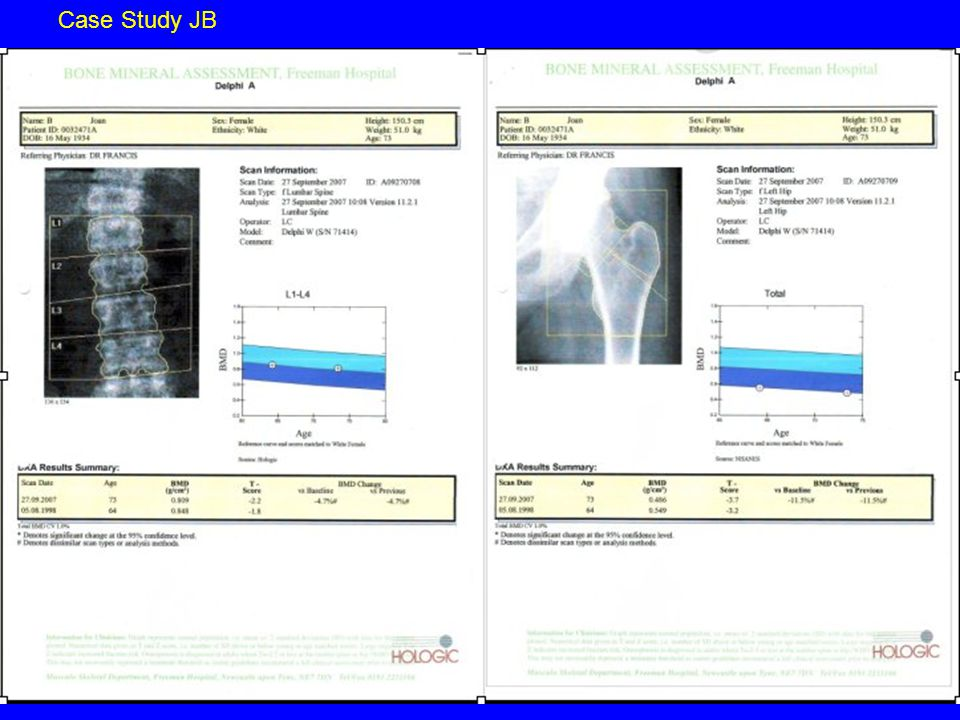 Clinical case JB Male 73 years Risk Factor Assessment 1998 # R NOF # R humerus in traumatic fall 2007 wedge fracture noted on chest x-ray Back pain constant mild and continuous Aching in R hip R knee L knee Weight 88 kg Height 1.67 Height loss no Kyphosis no Hypothyroid on replacement rx FH fracture no Smoker 10/day since 16 years of age Alcohol no Diet limited dairy and green vegetable intake Some time in garden in summer months Exercise walks every day ½ mile for paper PMH Hypertension Gout Hypothyroidism Heart Failure Previous MI Medication Simvastatin Bisoprolol Allopurinol Perindopril Aspirin Lansoprazole Levothyroxine Femoral neck T score –3.7 Lumbar T score –2.2