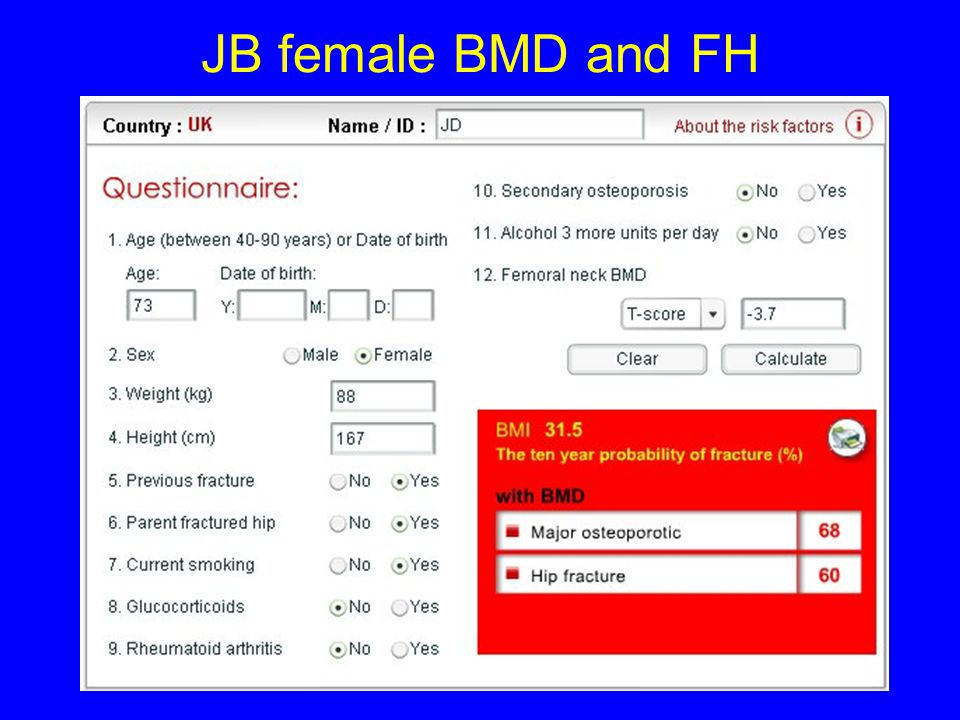 JB male BMD and FH