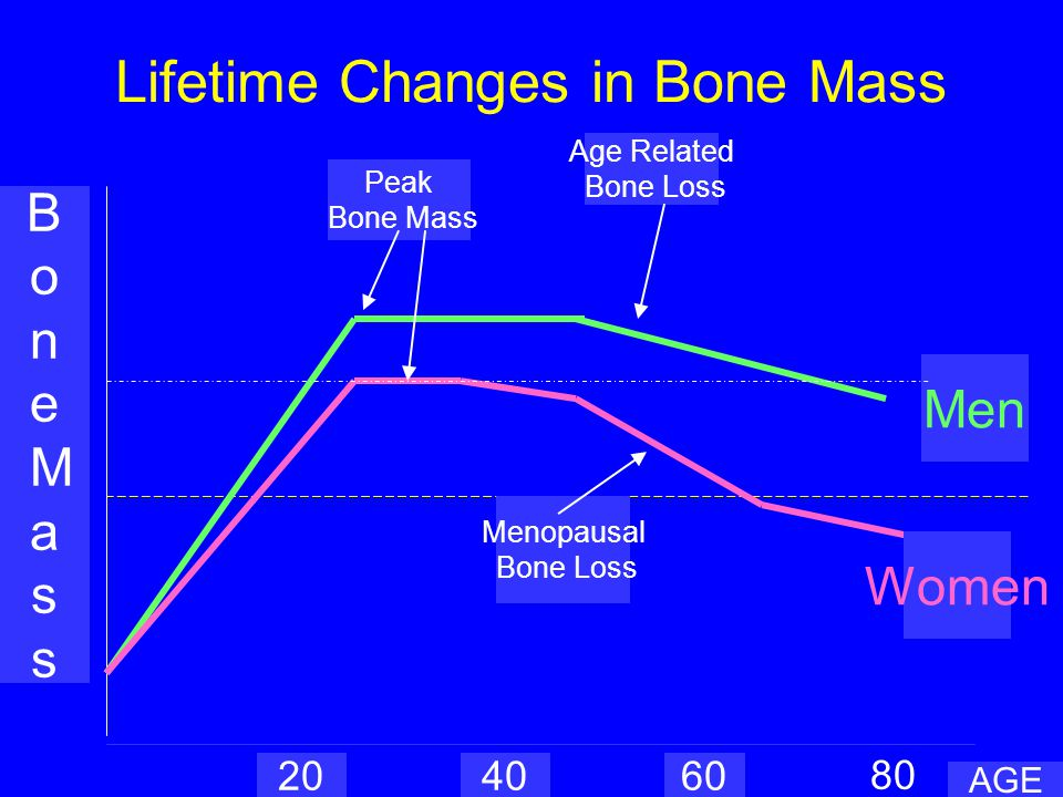 Bone Structure Reduced minerals osteoid connectivity
