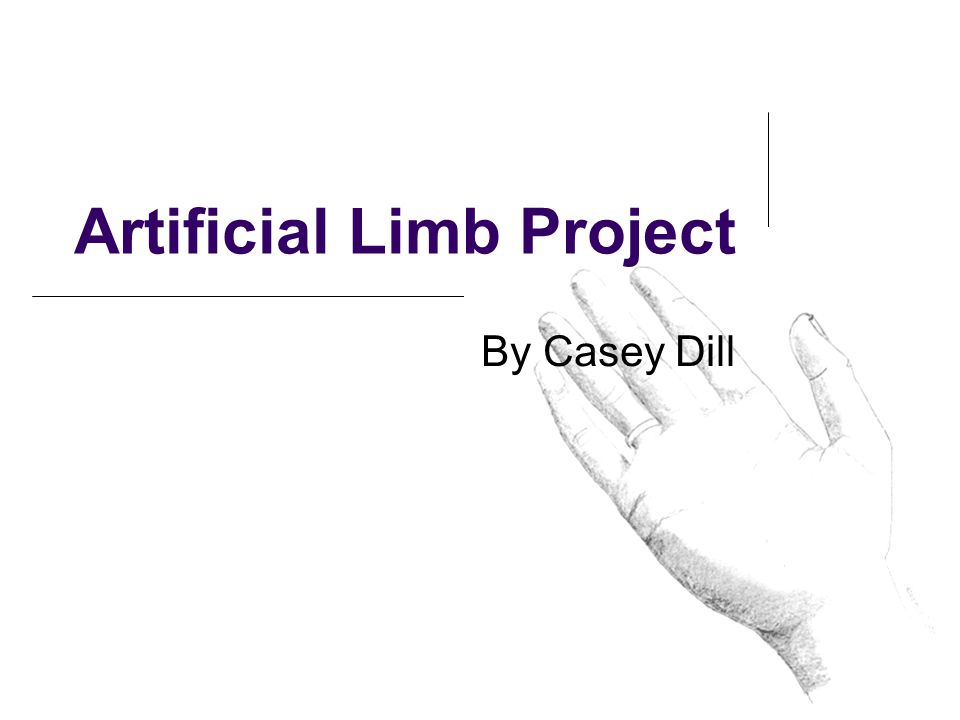 Artificial Limb Project By Casey Dill