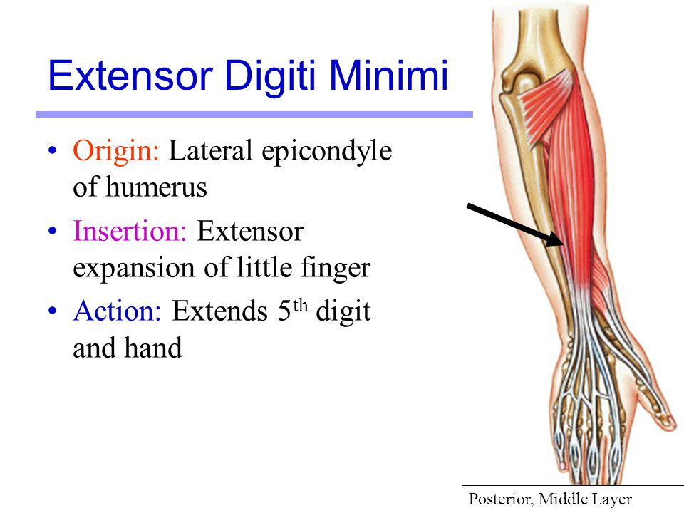 34 Origin: Lateral epicondyle of humerus Insertion: Extensor expansion of little finger Action: Extends 5 th digit and hand Extensor Digiti Minimi Pos