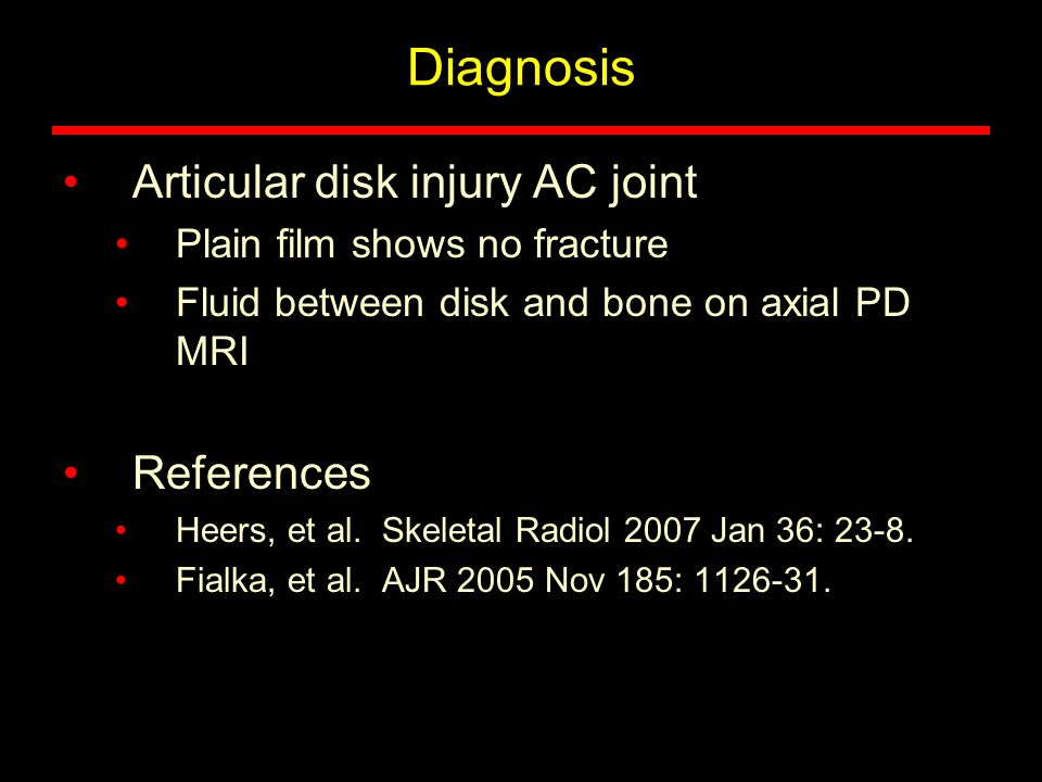Diagnosis Articular disk injury AC joint Plain film shows no fracture Fluid between disk and bone on axial PD MRI References Heers, et al.