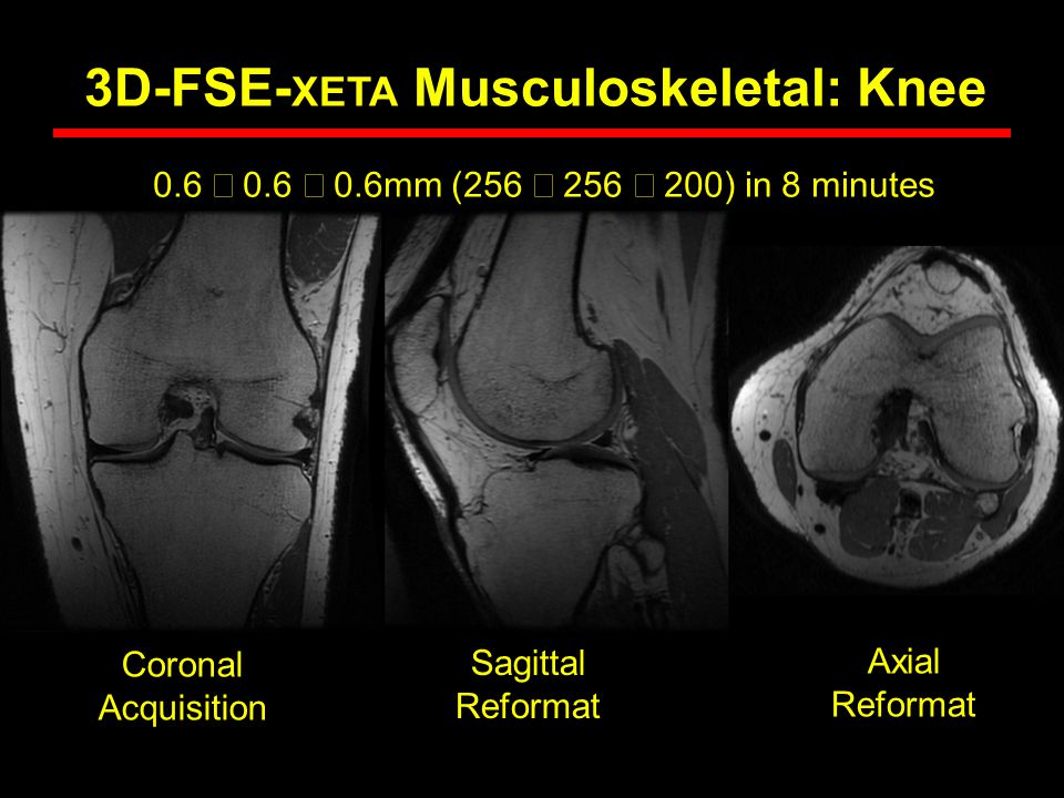 0.6  0.6  0.6mm (256  256  200) in 8 minutes Coronal Acquisition 3D-FSE- XETA Musculoskeletal: Knee Sagittal Reformat Axial Reformat