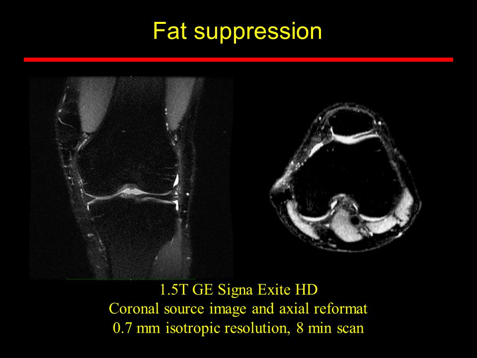 Fat suppression 1.5T GE Signa Exite HD Coronal source image and axial reformat 0.7 mm isotropic resolution, 8 min scan